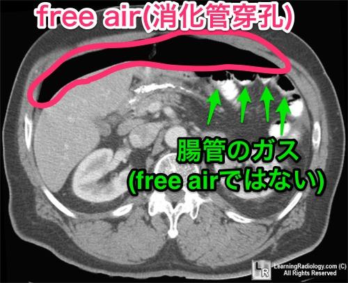 free-air-ct