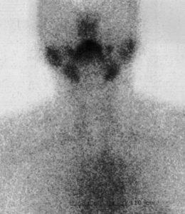 医師国家試験105A35_画像_無痛性甲状腺炎の甲状腺シンチグラム