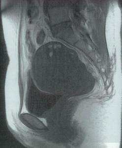 子宮腺筋症のMRI