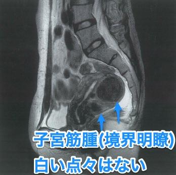子宮筋腫のMRI【102D60】-編集