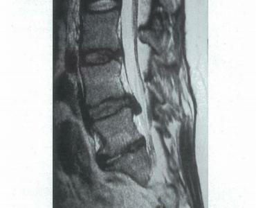 腰椎ヘルニアで傷害される神経根はどれ? | 神経根の番号のつけ方