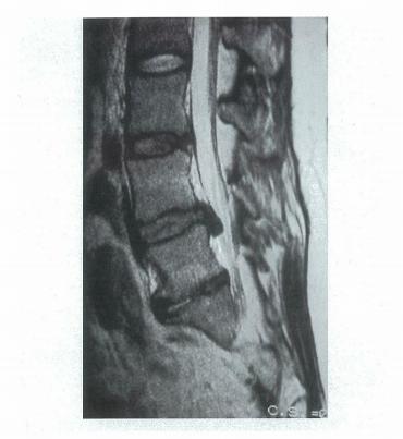 椎間板ヘルニアのMRI