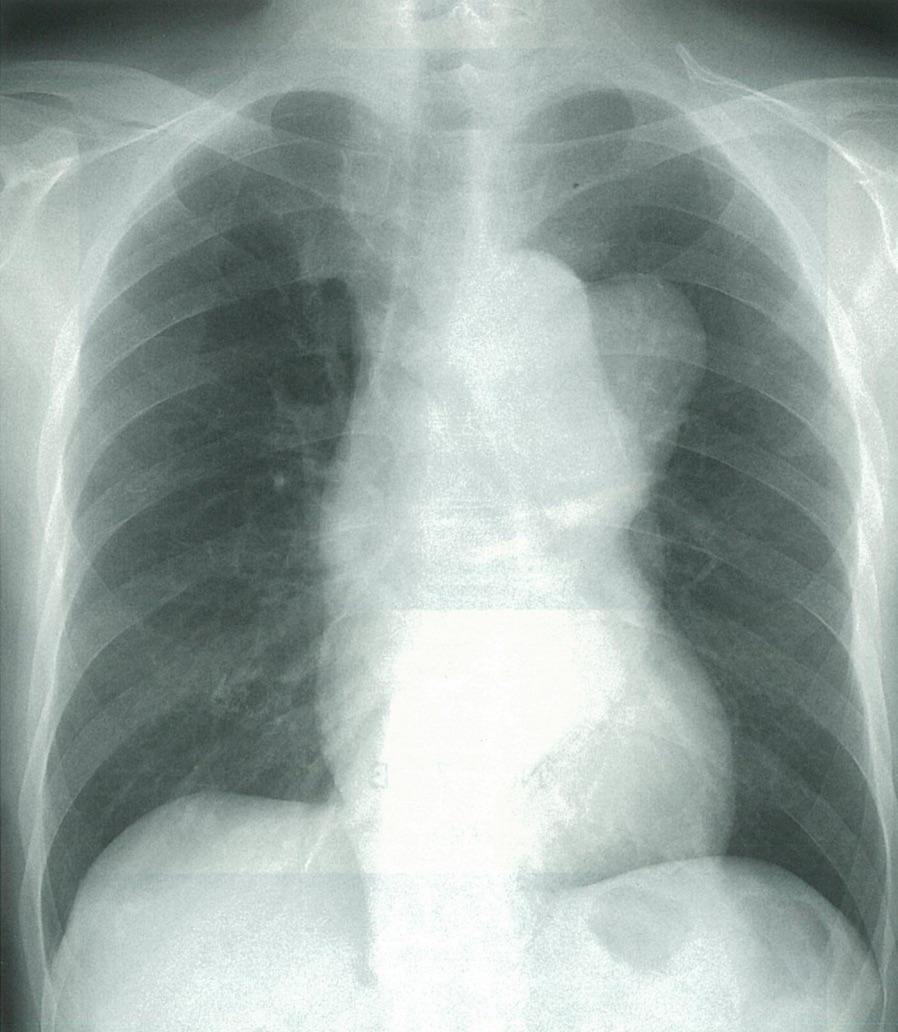 医師国家試験104D27_画像_大動脈瘤の胸部レントゲン