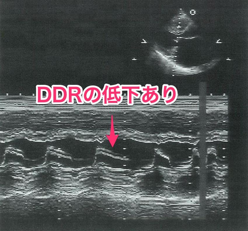 医師国家試験101G21_画像C_解説_僧帽弁狭窄症の心エコー(DDR低下)