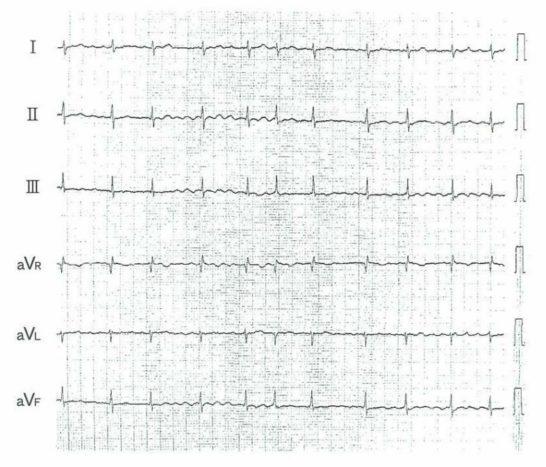 心房細動の心電図【101G21】