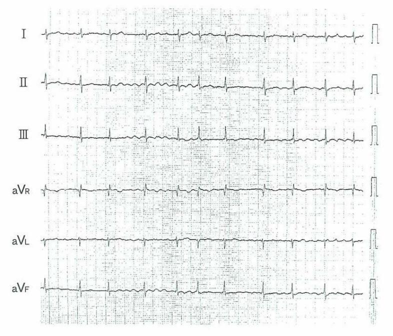医師国家試験101G21_画像A_心房細動の心電図