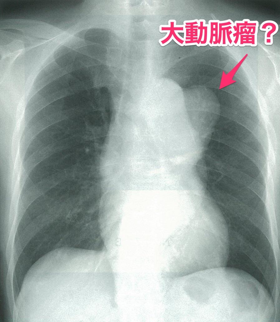 【104D27】大動脈瘤の胸部レントゲン_編集_