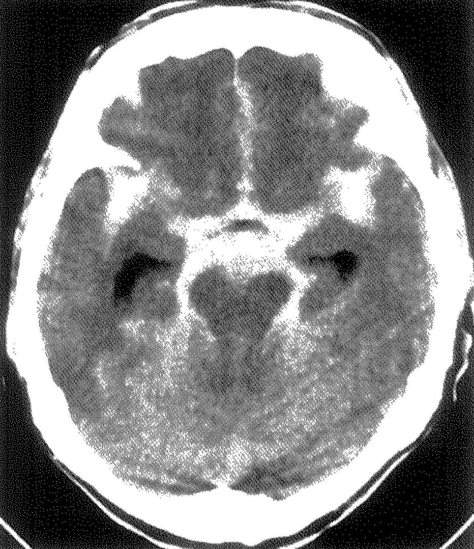 医師国家試験100H18_画像_くも膜下出血のCT