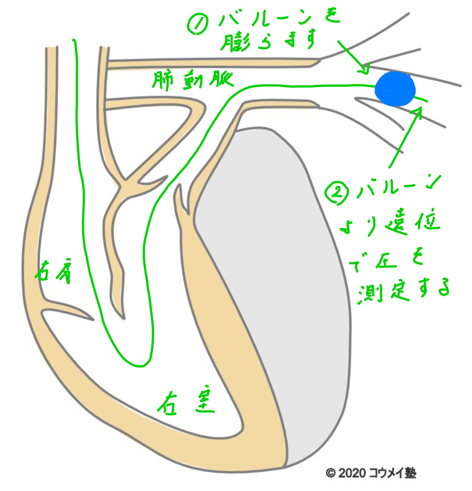 肺動脈楔入圧の測定法_書き込み後