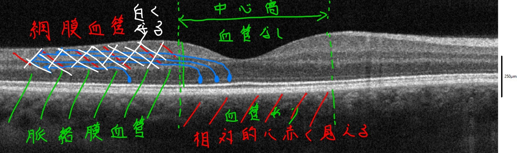 網膜中心動脈閉塞症でcherry red spotになる理由