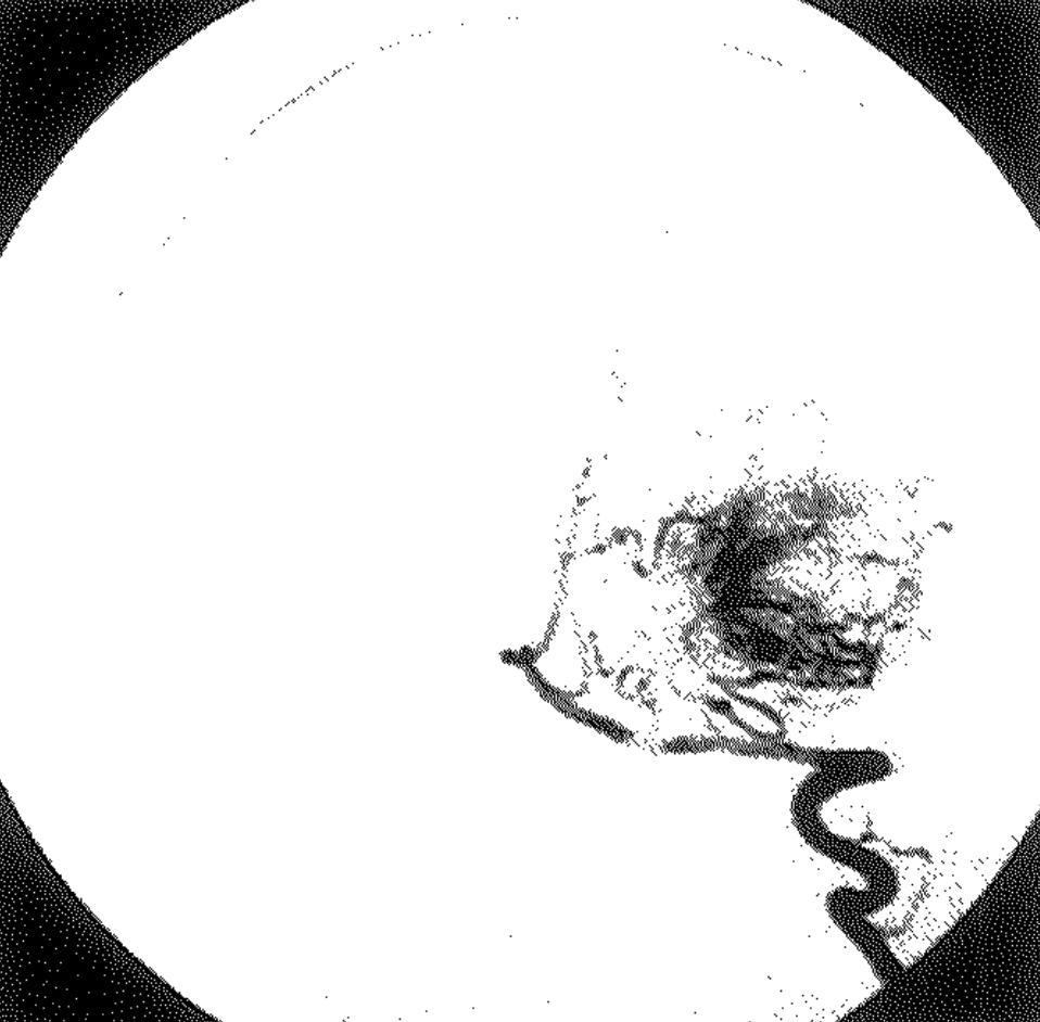 医師国家試験100A46_画像B_脳動静脈奇形の椎骨動脈造影