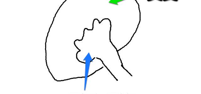 腎嚢胞と水腎症の見分けるポイント
