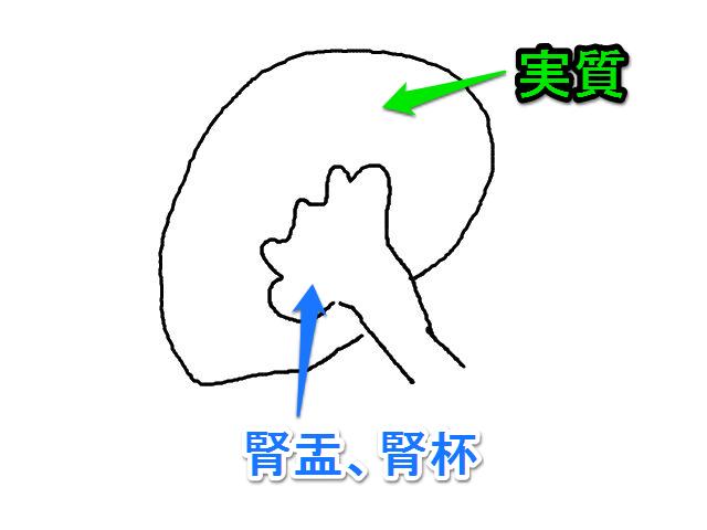 腎嚢胞と水腎症の違い