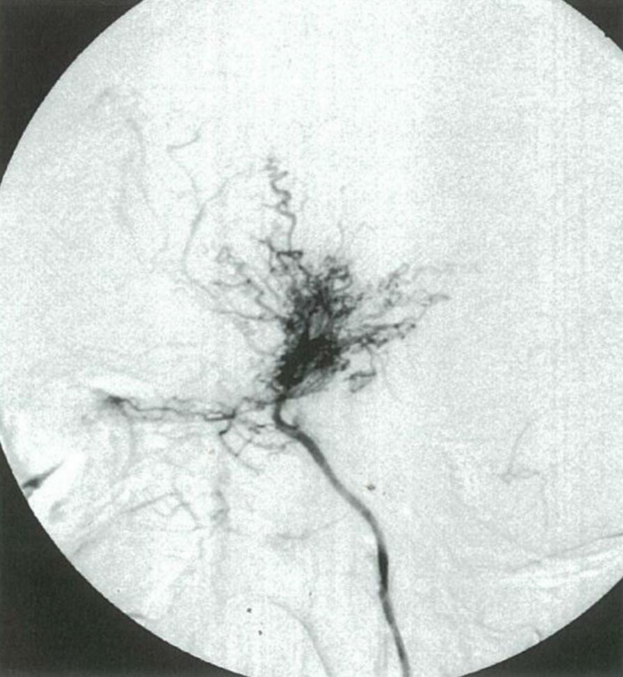 医師国家試験99G43_画像B_もやもや病の血管造影