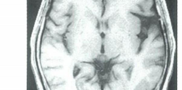 とても分かりやすいMRIの話 | FLAIR、拡散強調画像(DWI)、T2*とは?