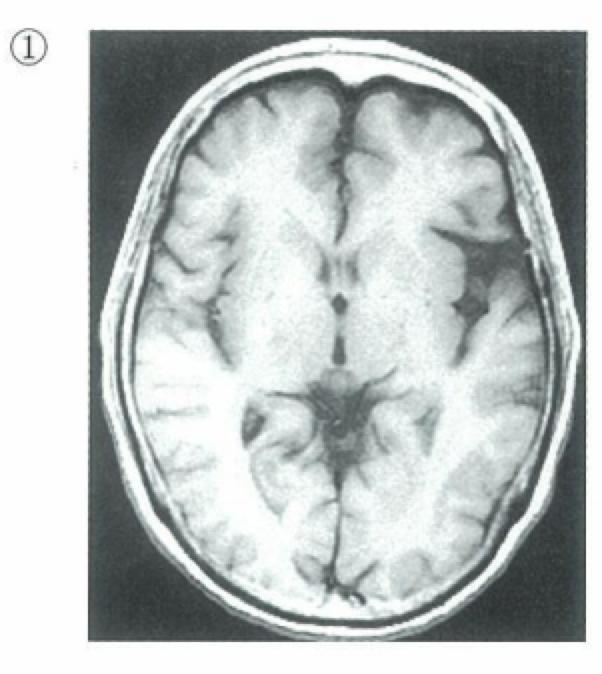 MRI-T1