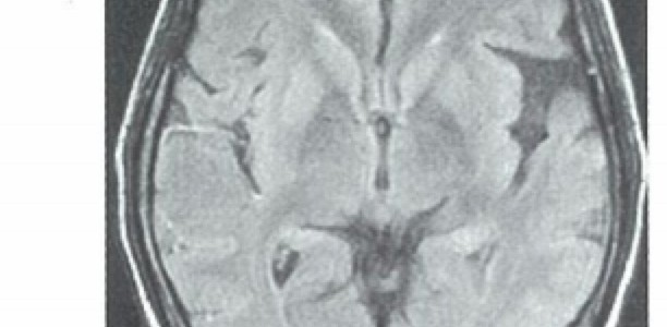 とても分かりやすいMRIの話 | FLAIRはT1?T2?