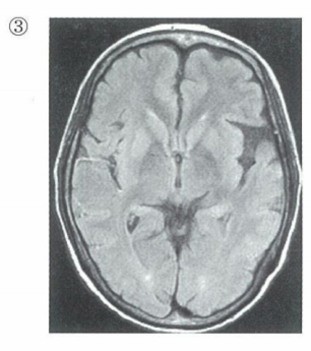 MRI-FRAIR