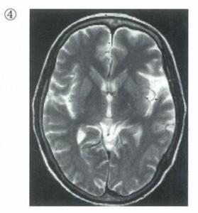 MRI-T2