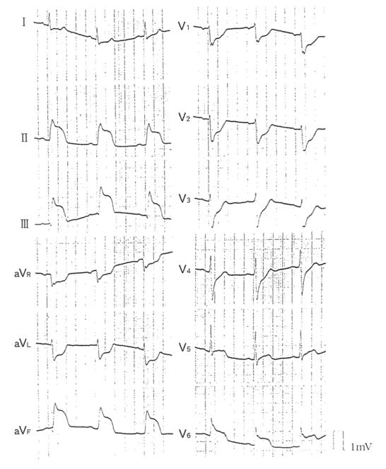 医師国家試験100C25_画像A_急性心筋梗塞の心電図