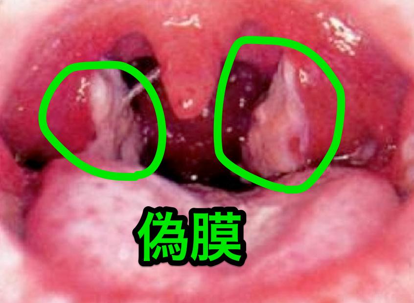 ジフテリアの偽膜