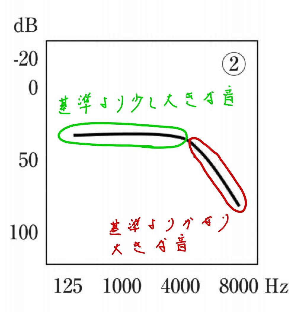 医師国家試験107C4_画像_純音聴力検査_老人性難聴_改変