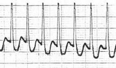 発作性上室頻拍の心電図