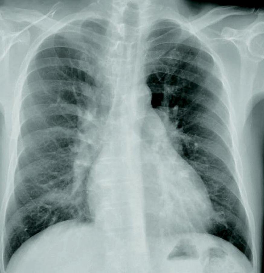 医師国家試験114A45_画像_胸部レントゲン写真