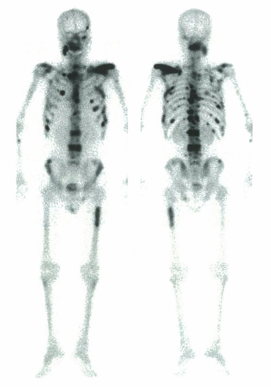 医師国家試験104D36_画像_骨シンチグラフィ