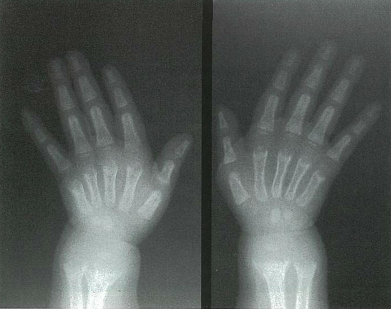 医師国家試験98D52_画像B_くる病のレントゲン写真