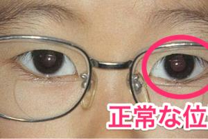 調節性内写真_眼鏡_