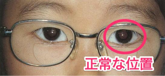医師国家試験95D8_画像B_調節性内斜視の写真(眼鏡)_改変