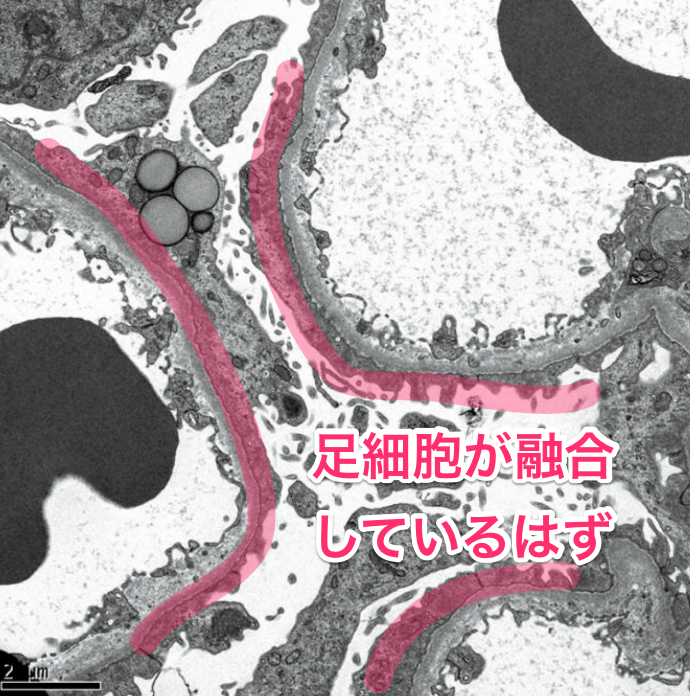 医師国家試験112F57_画像B_解説_微小変化型の電顕2
