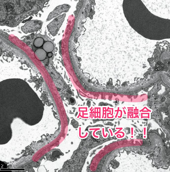 医師国家試験112F57_画像B_解説_微小変化型の電顕3