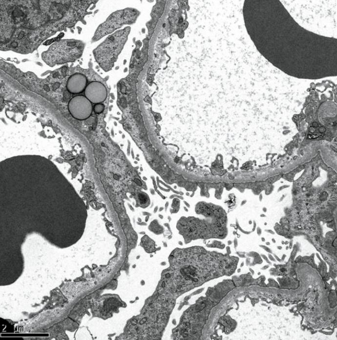 医師国家試験107A39_画像B_微小変化群の電子顕微鏡写真