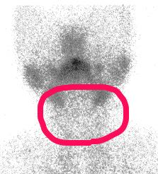 医師国家試験100F52_画像解説2_無痛性甲状腺炎