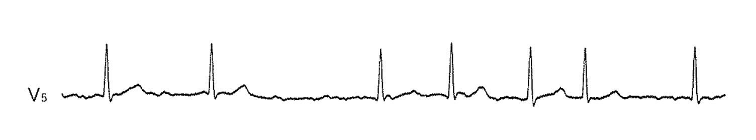 【104D14】心房細動の心電図