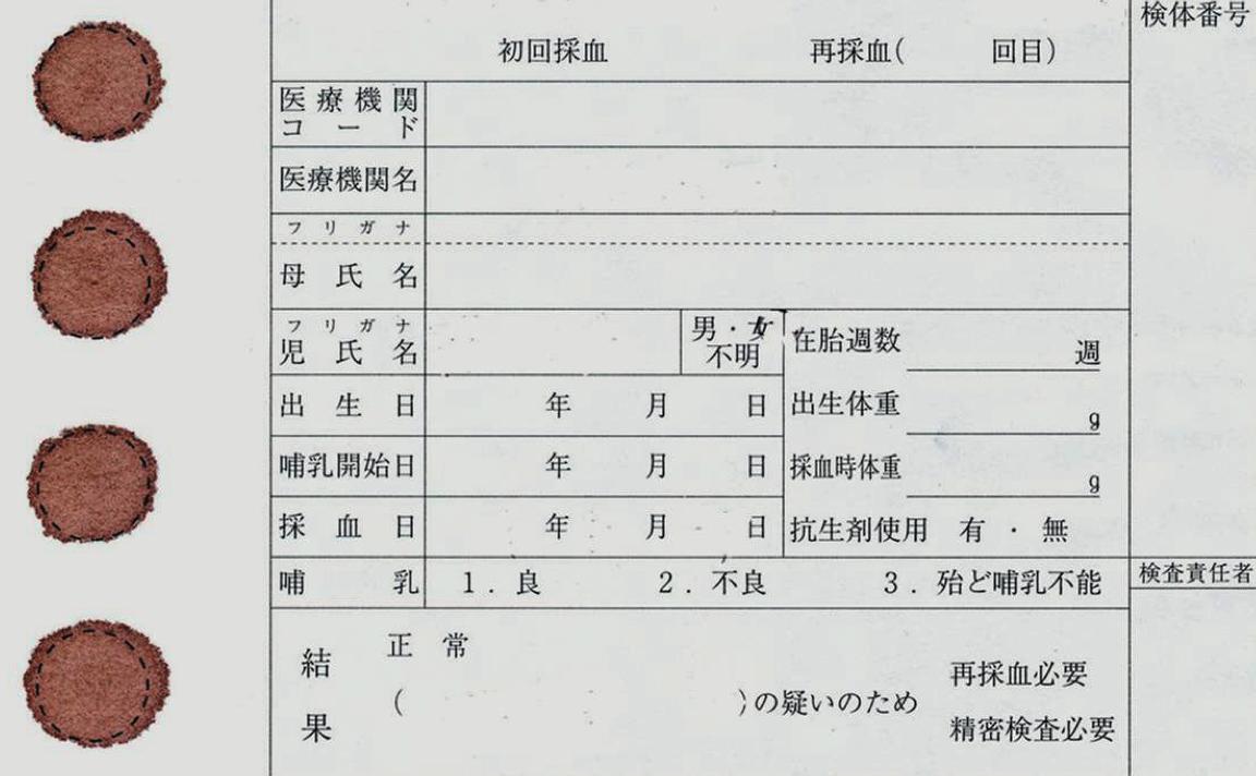 医師国家試験106E9_画像_新生児マススクリーニング