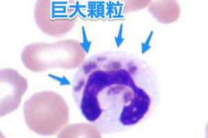 Chediak-Higashi症候群の画像