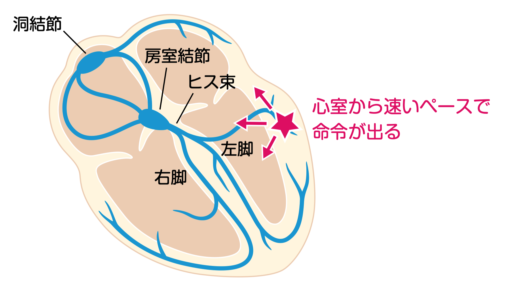 心室頻拍のイラスト_これだけ心電図