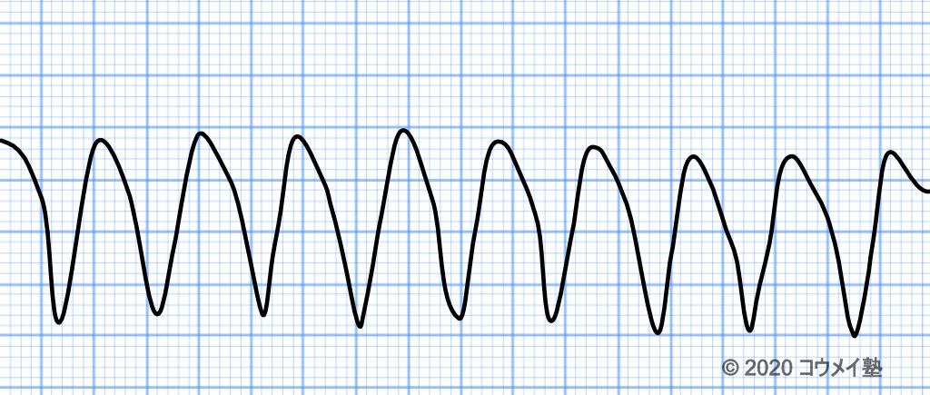 心室頻拍の病態
