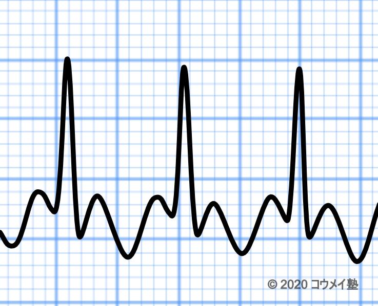 2:1伝導の心房粗動の心電図
