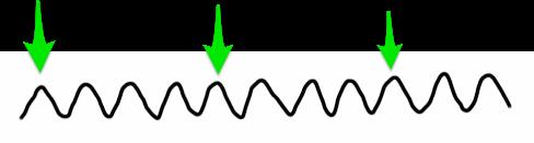 F波_QRS波