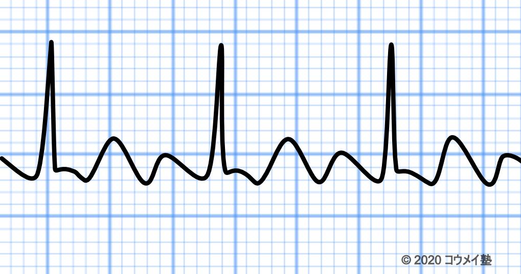 3:1伝導の心房粗動の心電図