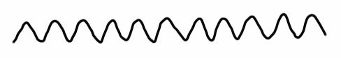 心房粗動のF波