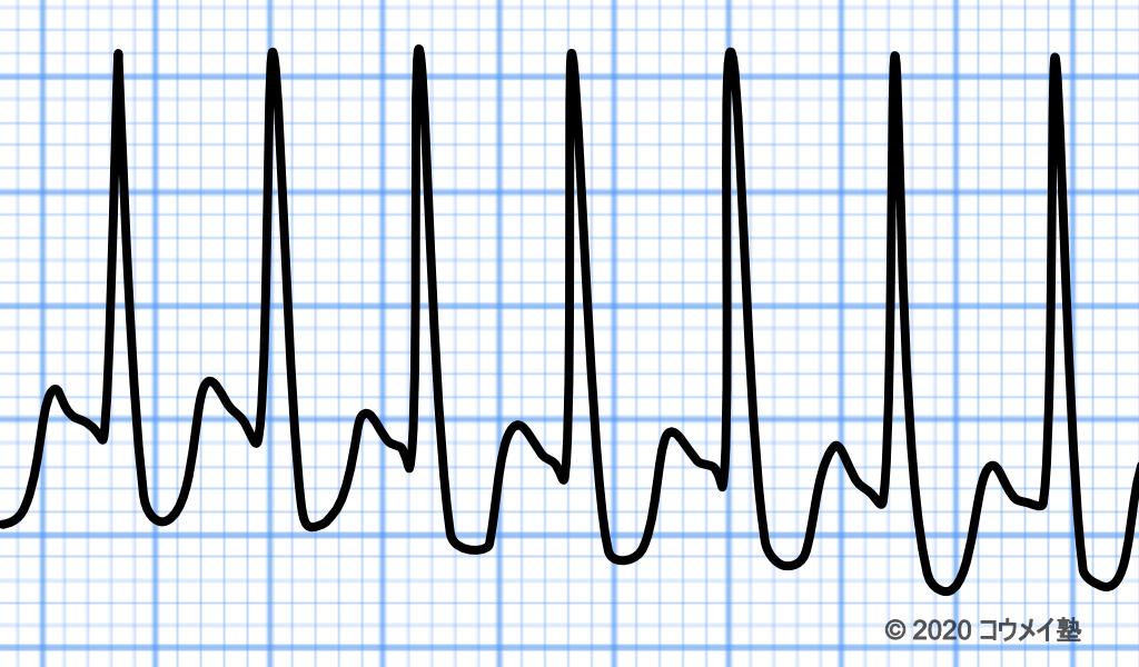 発作際上室頻拍の心電図