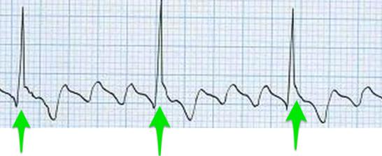 心房粗動の心電図