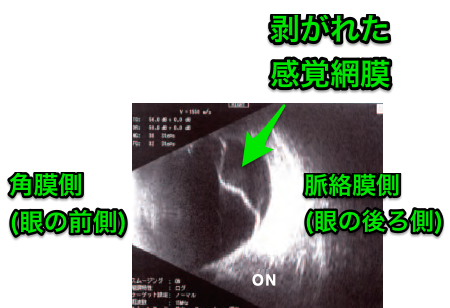 網膜剥離の超音波_エコー_