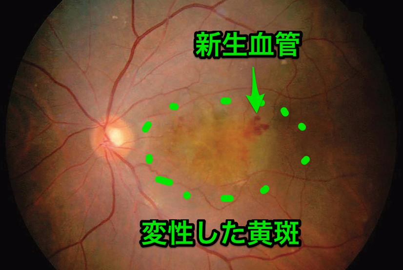 加齢黄斑変性の眼底写真