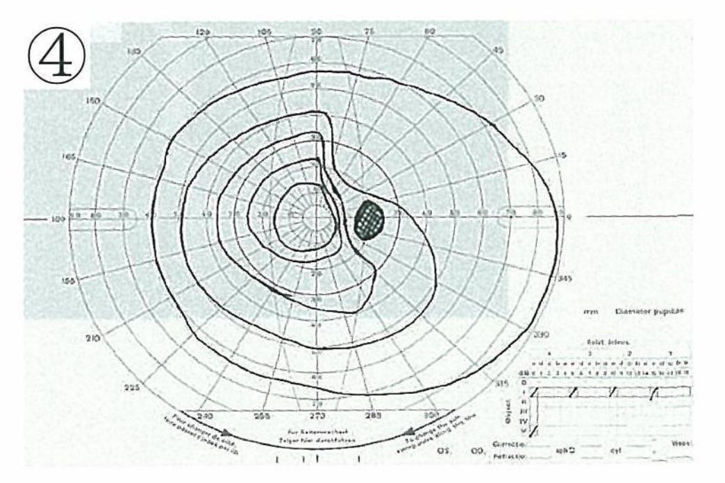 医師国家試験104G54_画像B(4)_視野検査
